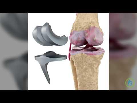 Leziuni a ligamentului încrucișat posterior