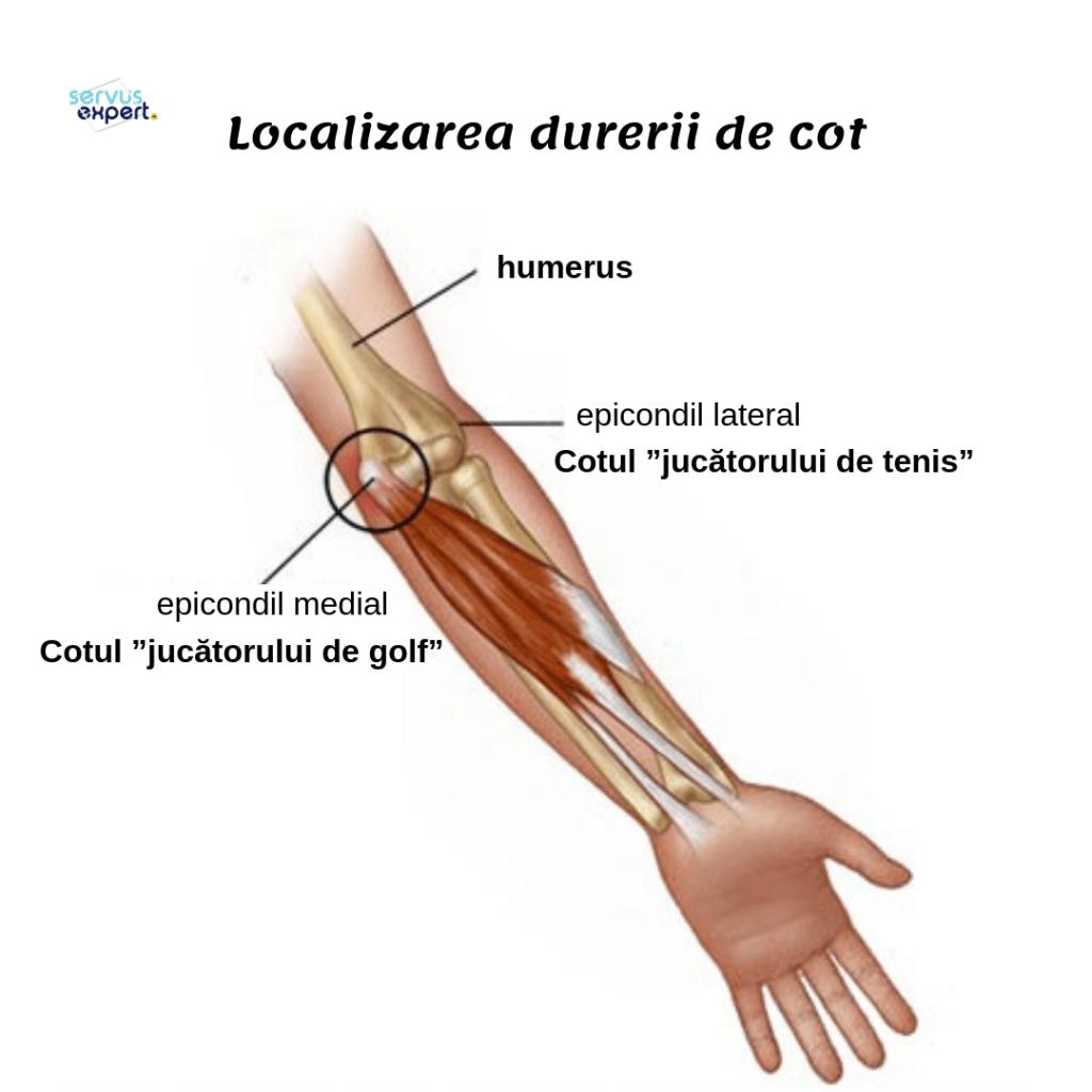 Compresa pentru durere în articulațiile brațului