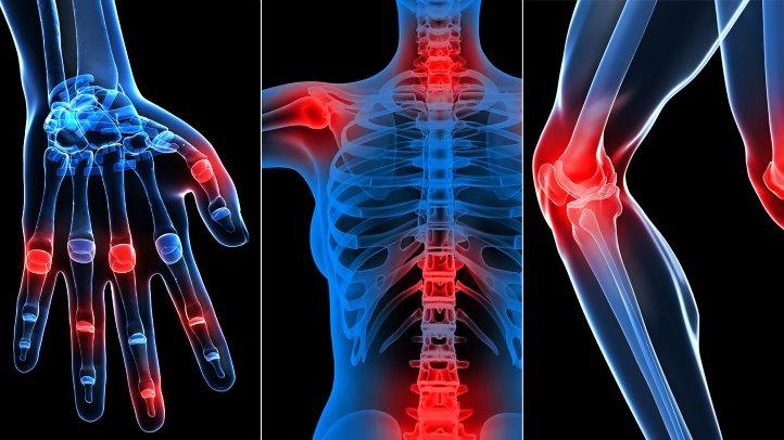 cât timp să tratezi artroza articulația sinovială pe braț doare
