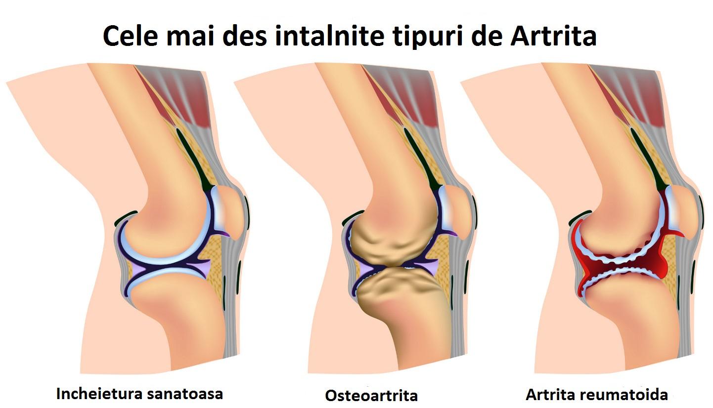 cum și cum se poate trata artrita piciorului cum să tratezi mușchii articulației cotului