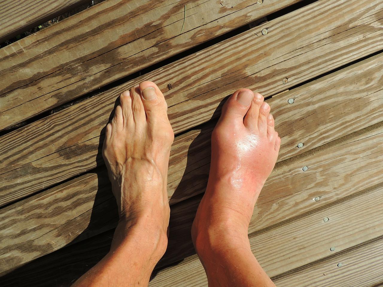 cum și cum se poate trata artrita piciorului durere cauzată de o injecție la genunchi