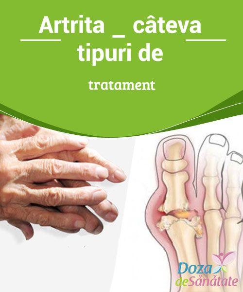 cum să tratezi și decât artrita