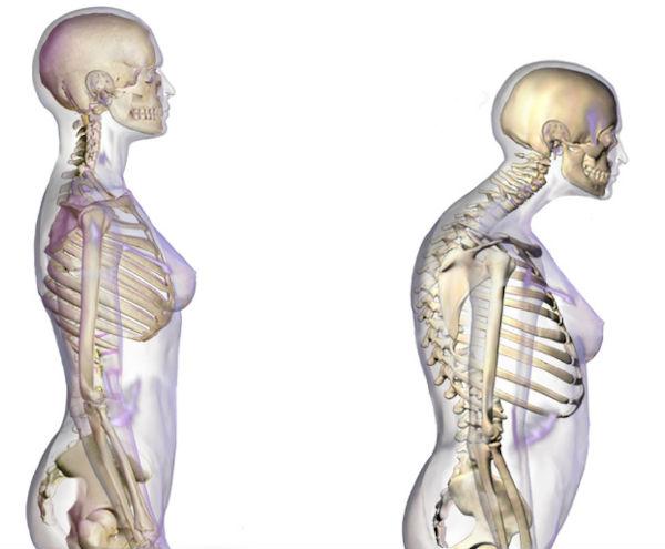 cum se tratează osteoporoza cu artrita