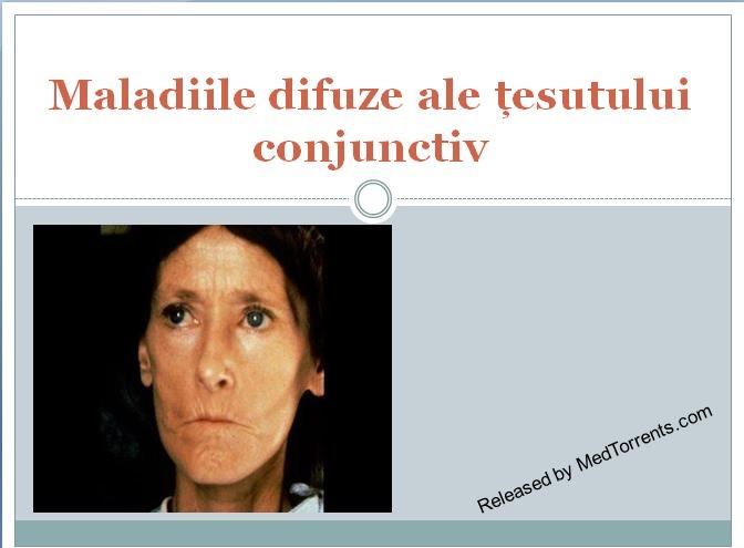 Boala mixtă de țesut conjunctiv - tranzactiiimobiliareonline.ro