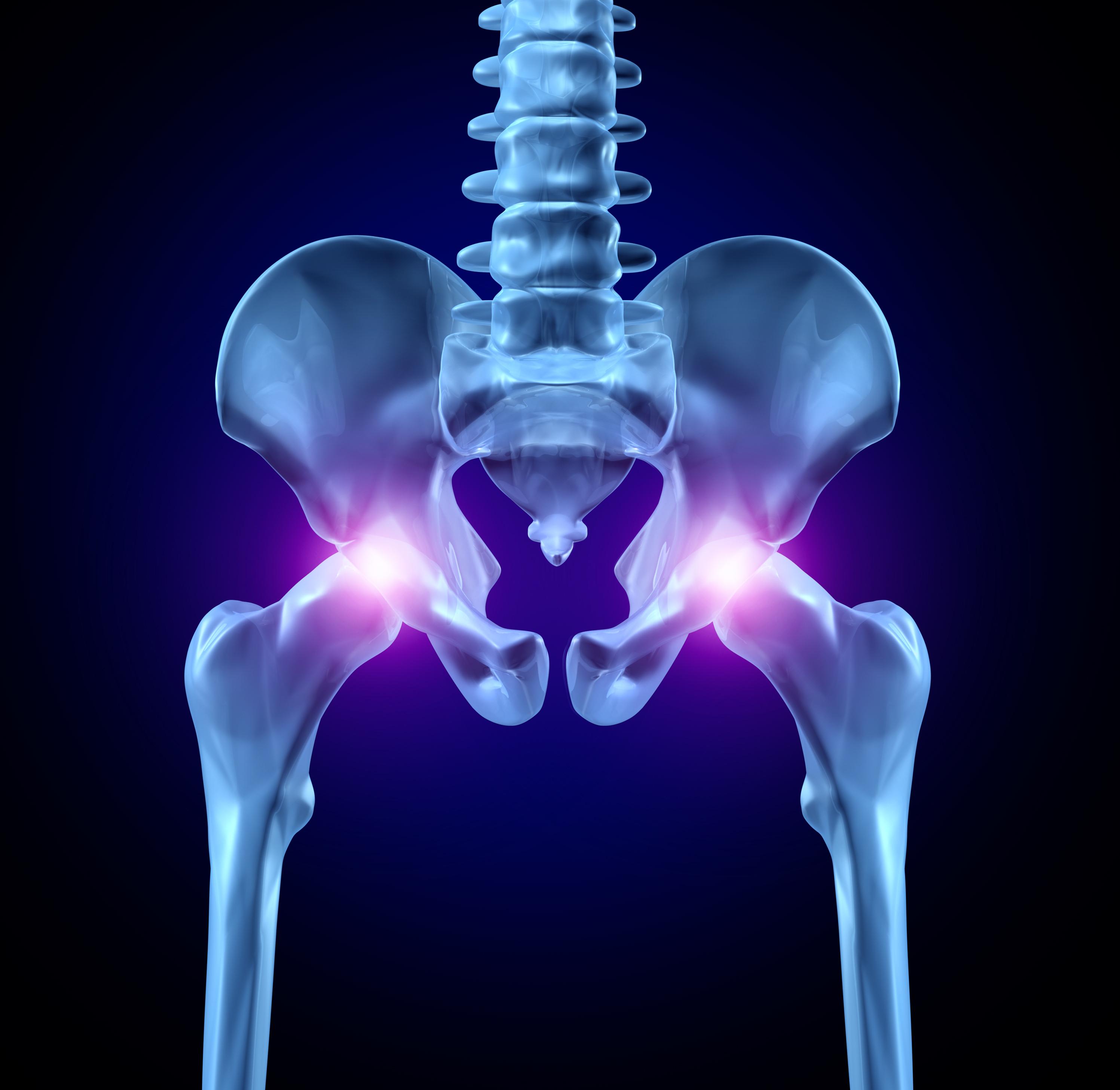artroza postoperatorie a articulației șoldului Dureri articulare Vizanna