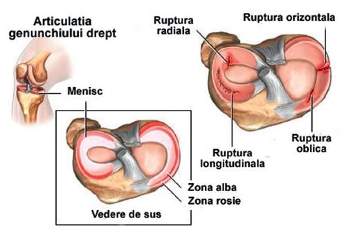 unguent pentru reumatismul genunchiului
