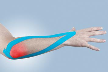 care tratează epicondilita tratamentul articulațiilor cotului