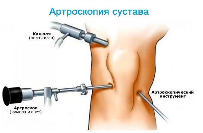 tratamentul inflamației articulațiilor degetului mare tratament articular puternic