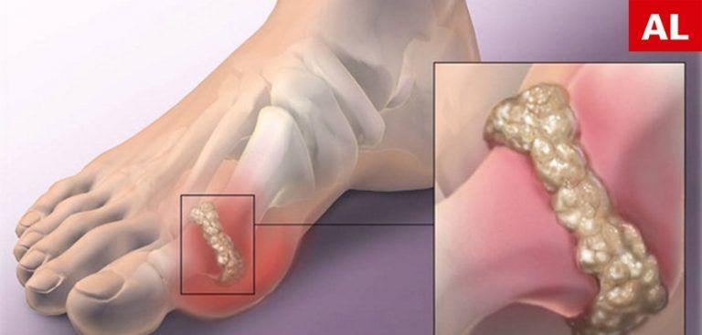 de ce umflarea în articulație cum să tratezi artrita purulentă