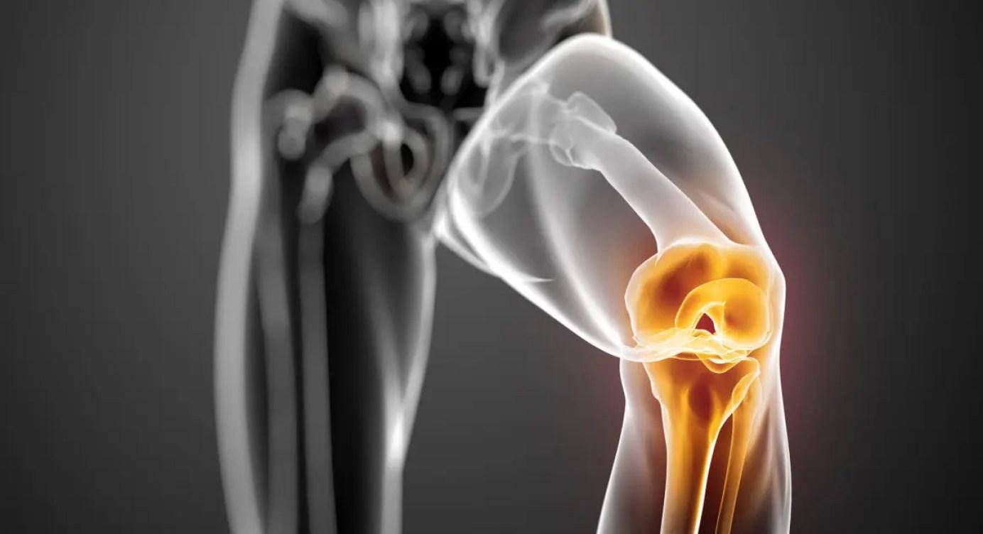 deteriorarea ligamentelor laterale și cruciate ale articulației genunchiului