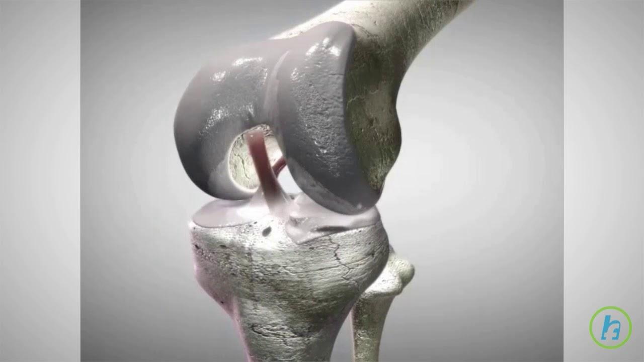 deteriorarea parțială a ligamentului încrucișat al genunchiului