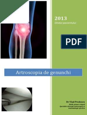 disertație de boală la genunchi tratamentul artrozei de unde să înceapă