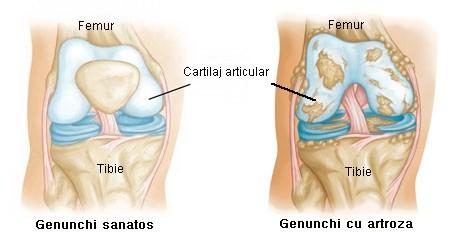 distrugerea articulației artroze inflamația nervului sciatic al articulației genunchiului