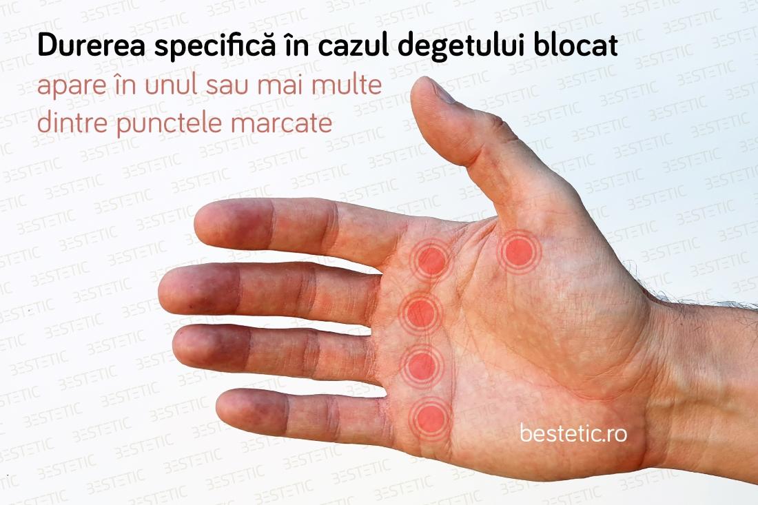 durere acută în articulația palmei