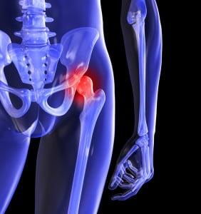 durere dureroasă noaptea în articulația șoldului