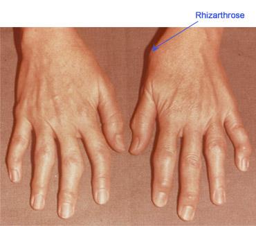 durere în articulația degetului mare comprima