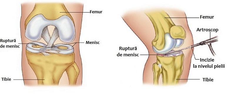 Articulatia genunchiului (genunchiul)