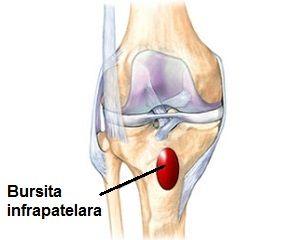 dacă nu tratați bursita articulației genunchiului