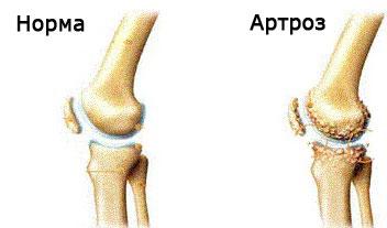 perioada de restaurare a genunchiului articulațiile bolii cum să tratezi