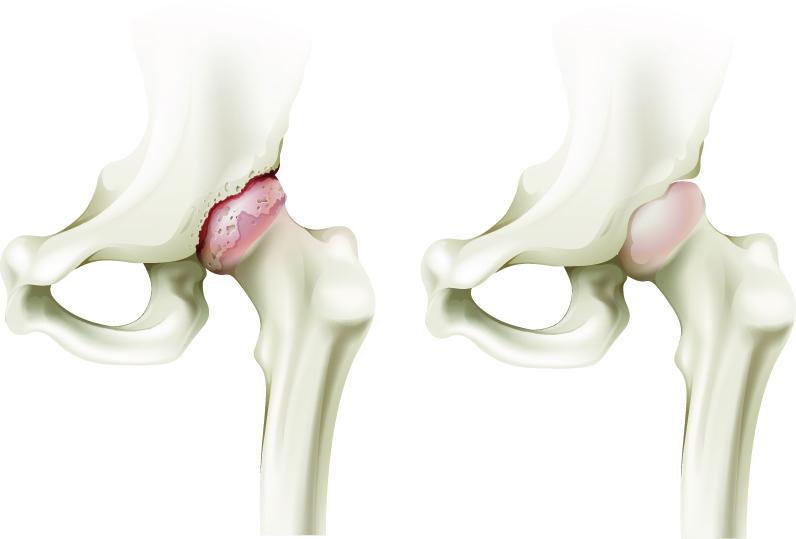 cauze ale coxartrozei tratamentului articulației șoldului