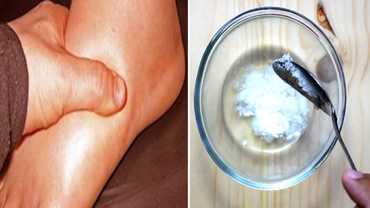 de ce rănesc articulațiile picioarelor