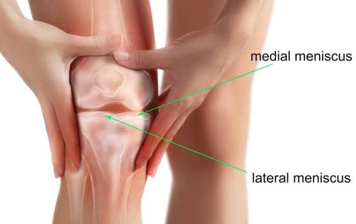 fractură a articulației genunchiului fără tratament de deplasare