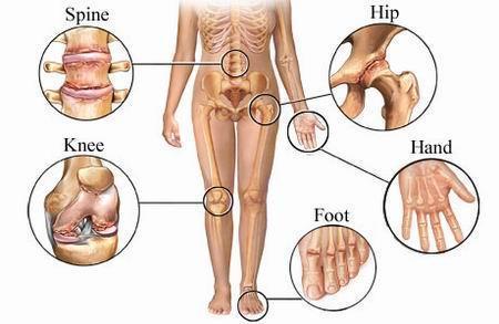 generice de tratament articular tratamentul articulației genunchiului stâng