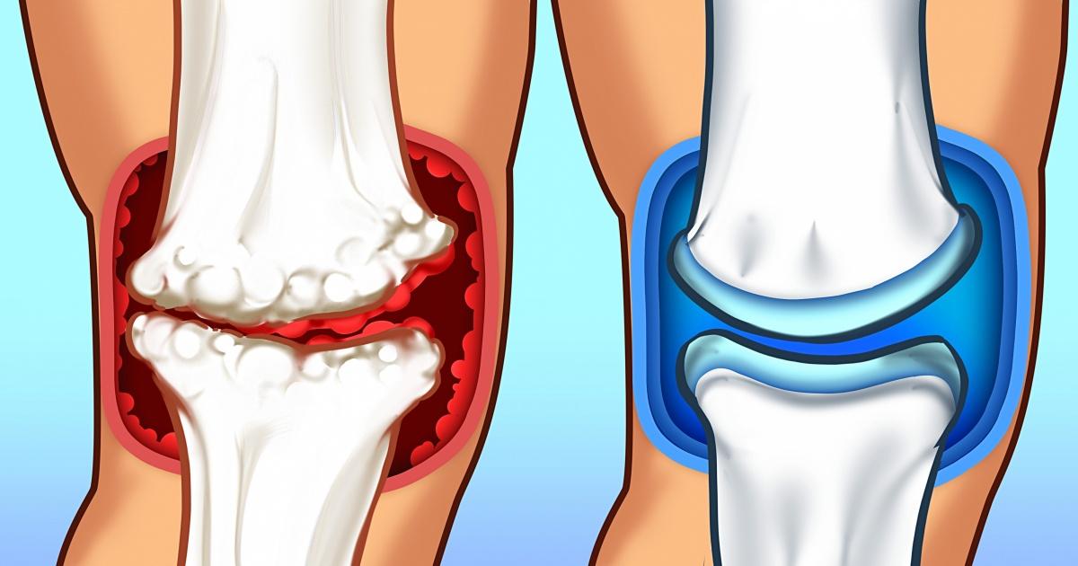 inflamația articulară se numește tratamente pentru entorsa cotului