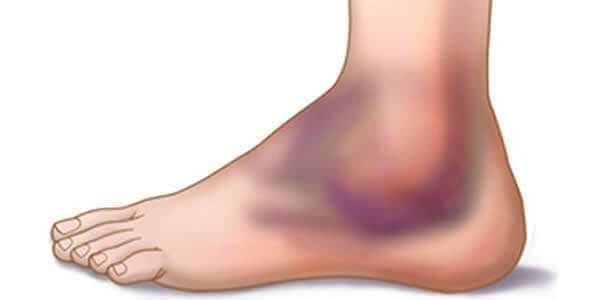 leac pentru durerile de gleznă artroza șoldurilor poate fi tratată
