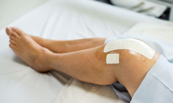 lichid în tratamentul medicamentos al articulațiilor genunchiului
