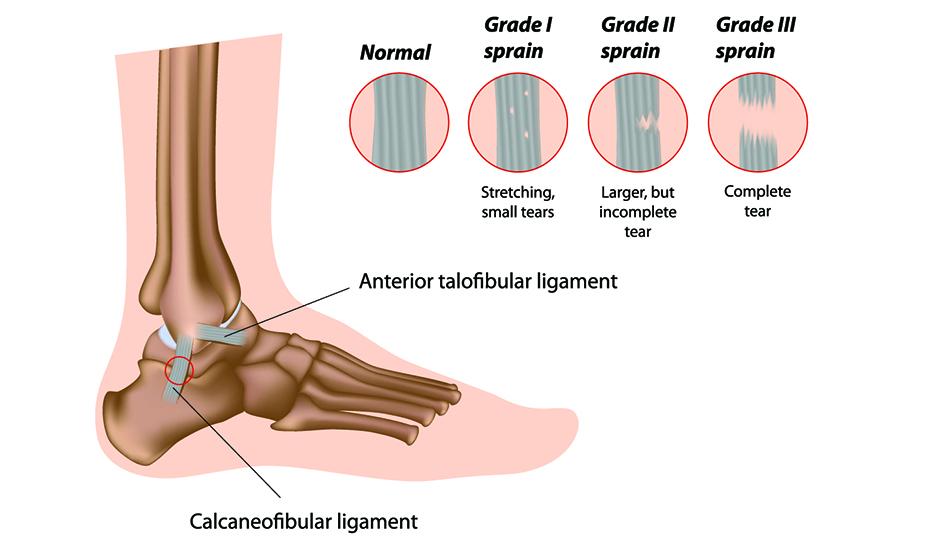 ligamente dureroase ale articulației gleznei