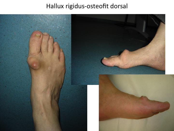 midcalm cu artroza articulației gleznei