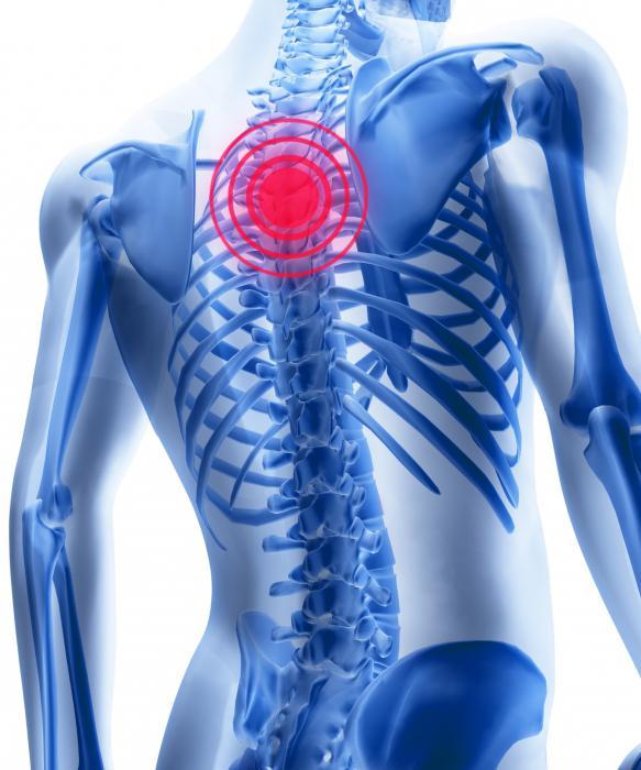 Osteocondroza cervicală poate da gâtului și provoca durere - Osteocondrozei -