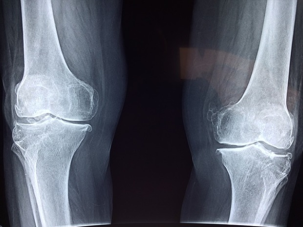 Pansamente pentru tratamentul articulațiilor genunchiului - Artroza genunchiului (gonartroza)