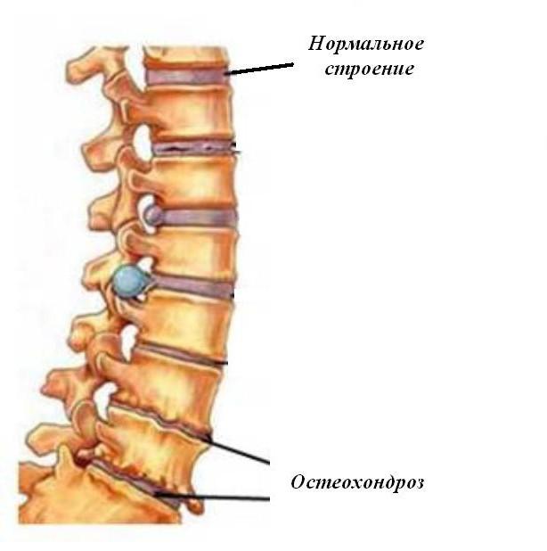 Preparate hormonale pentru osteochondroză. Osteochondroza. Cursul bolii