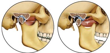 probleme de articulație a coonului maine