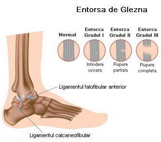Refacerea ligamentelor de gleznă după întindere Secondary right navigation