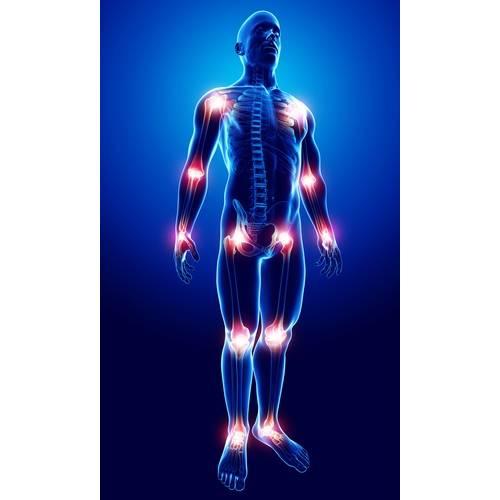 se observă inflamația articulară și volatilitatea durerii boli ale țesutului conjunctiv muscular