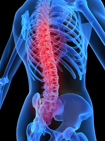 simptomele bolilor articulare și ale coloanei vertebrale Recenzii privind tratamentul articulațiilor uleiului de piatră