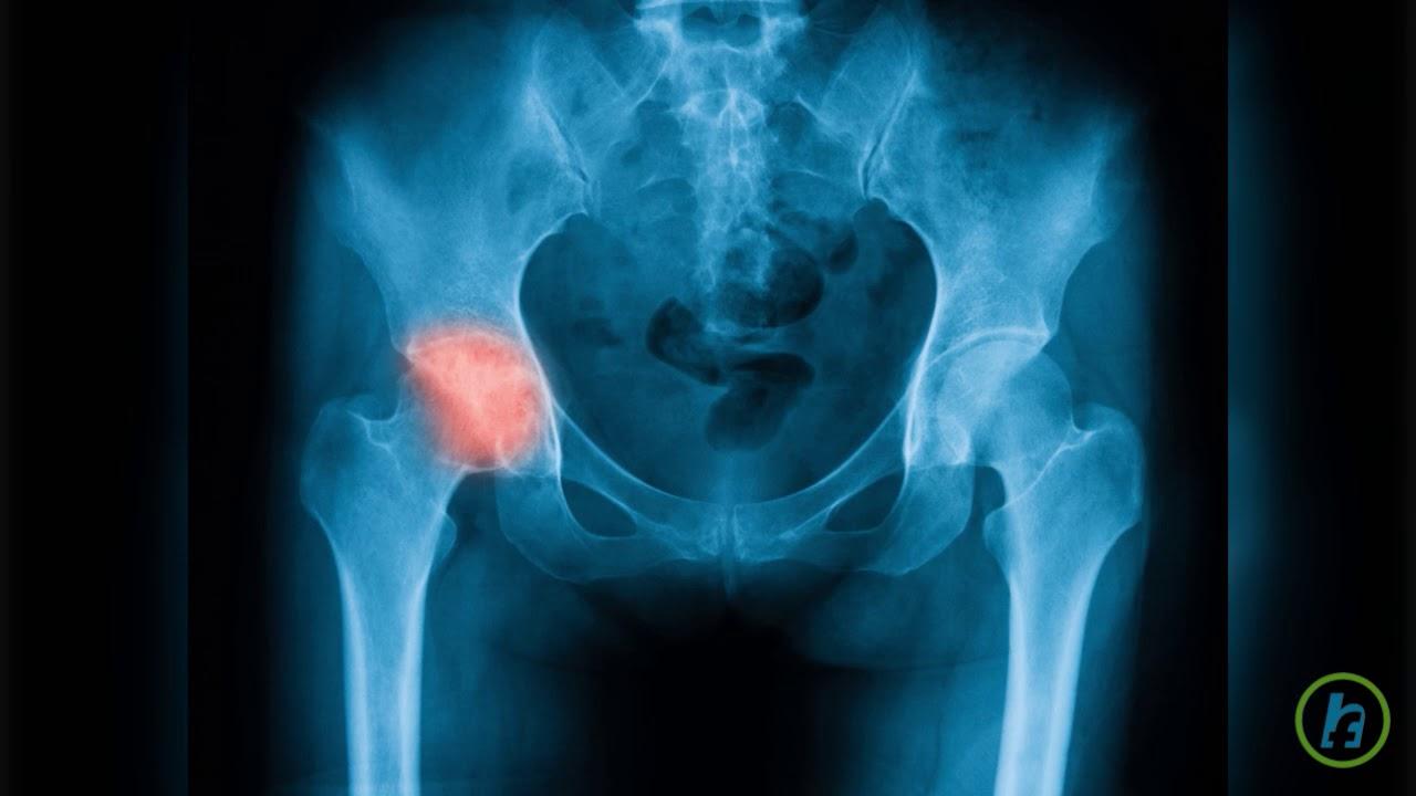 tratament articular în îngrămădire luând statine și dureri articulare