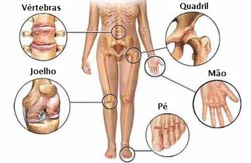 tipuri de boli de mobilitate articulară