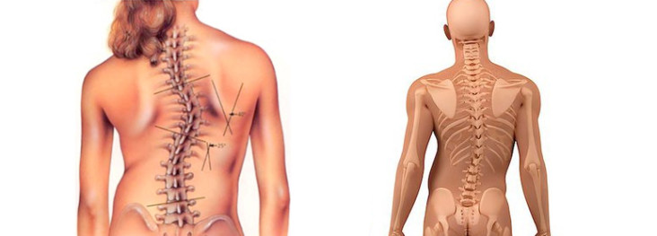 tratamentul articulației coloanei vertebrale
