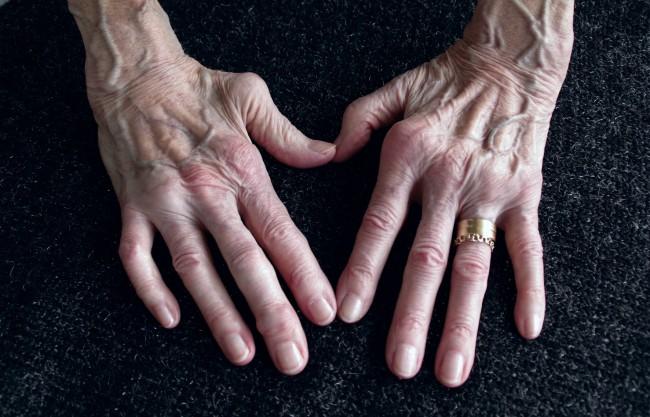 durere în articulațiile cheie ce doare articulația cotului ce este