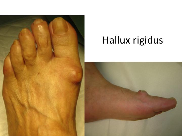 artrita de la picior este posibil să crească