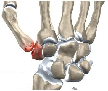 ondulația bolii articulare