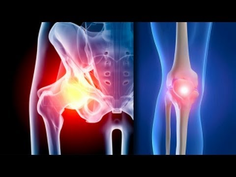 tratamentul clinic al artrozei genunchiului
