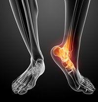 Tratamentul cu artroză lazară. Gonartroza – reabilitarea genunchiului