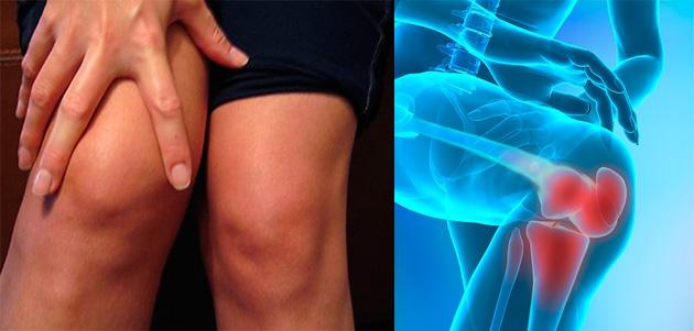 tratamentul electric al artrozei genunchiului fluid în cauzele articulației șoldului și tratament
