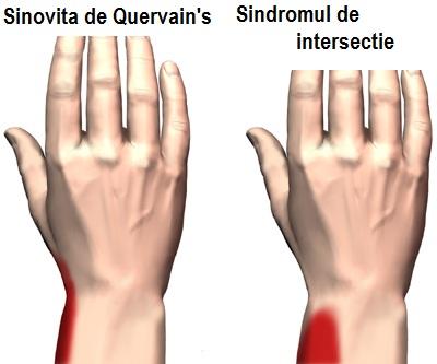 Lump la încheietura mâinii: cauze și tratament
