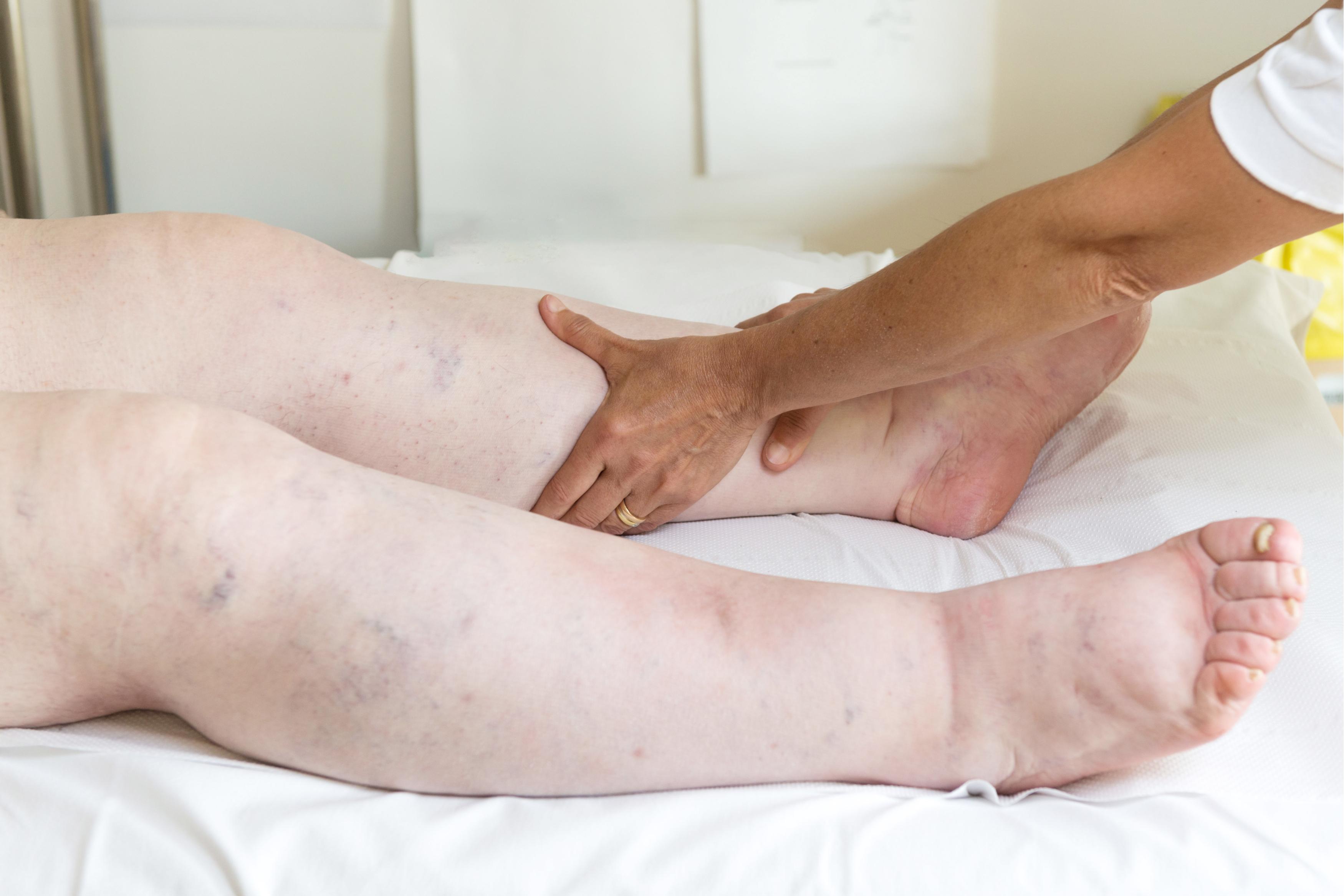 umflarea picioarelor sub articulație durere de osteocondroză în articulația umărului mâinii drepte